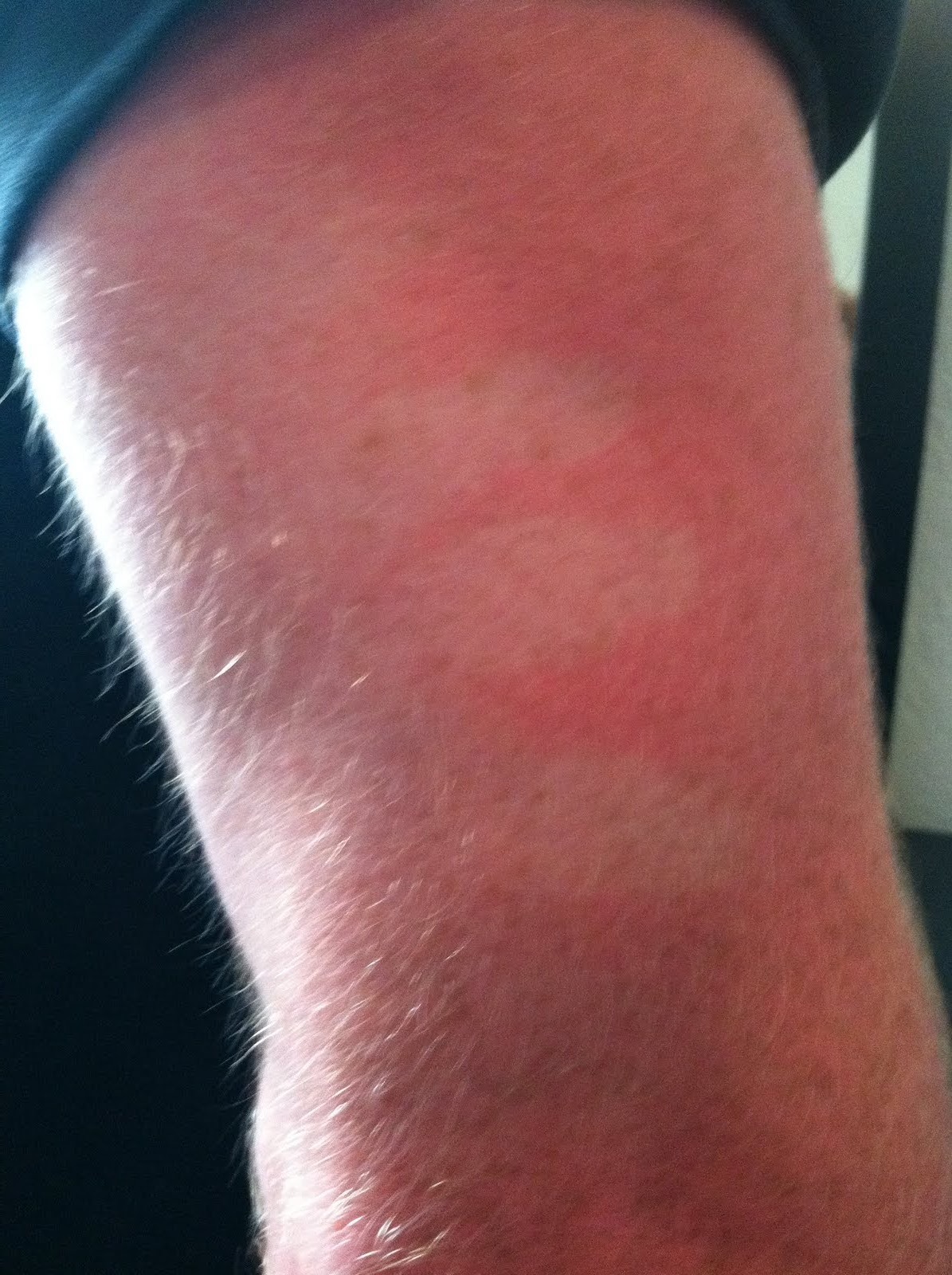 Picture of Sunburn - WebMD